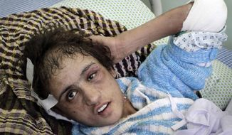 ** FILE ** In this Saturday, Jan. 7, 2012, file photo, Sahar Gul, 15-year-old speaks during an interview with the Associated Press, as she is seen on a bed at a hospital in Kabul, Afghanistan. (AP Photo/Musadeq Sadeq, File)