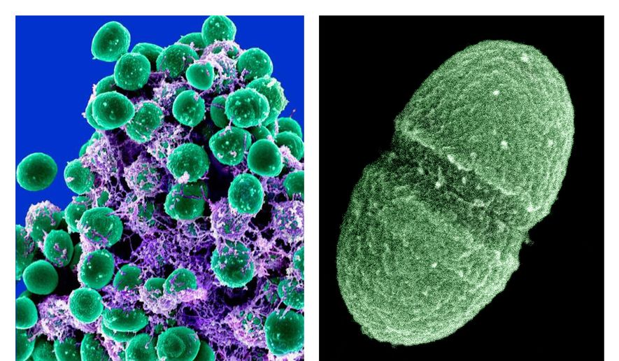A clump of Staphylococcus epidermidis bacteria (left, in green) in the extracellular matrix, which connects cells and tissue, is shown under a scanning electron microscope. At right is the bacterium Enterococcus faecalis, which lives in the human gut. (Associated Press/National Institute of Allergy and Infectious Diseases and U.S. Department of Agriculture) ** FILE **