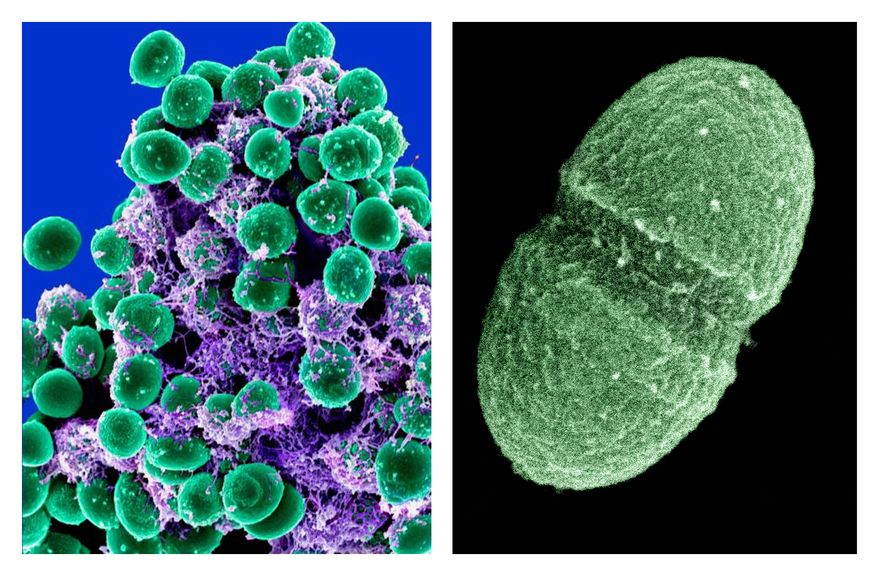 A clump of Staphylococcus epidermidis bacteria (left, in green) in the extracellular matrix, which connects cells and tissue, is shown under a scanning electron microscope. At right is the bacterium Enterococcus faecalis, which lives in the human gut. (Associated Press/National Institute of Allergy and Infectious Diseases and U.S. Department of Agriculture)