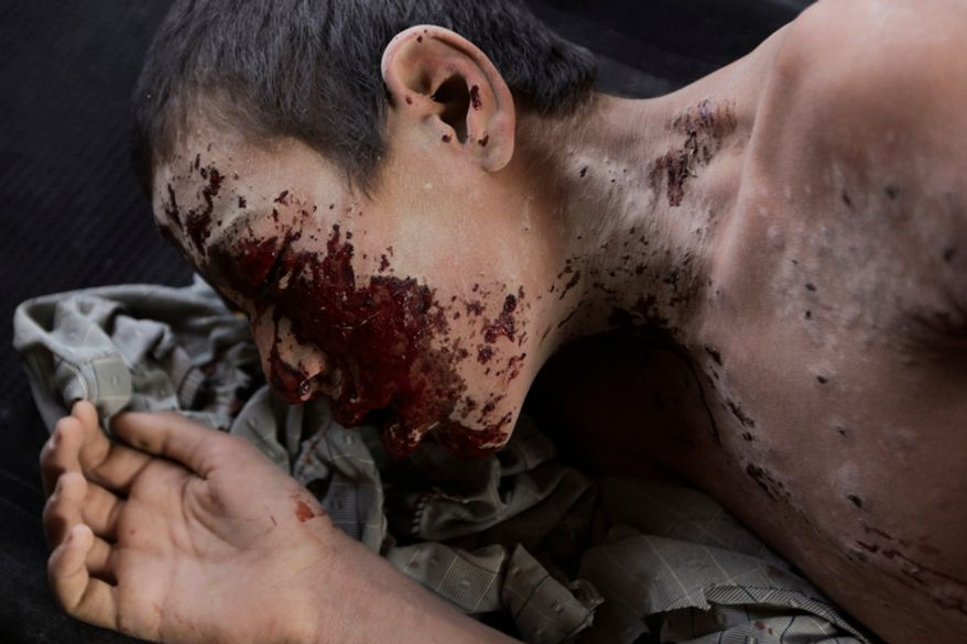 During a U.S. Army Task Force Shadow helicopter rescue mission, a boy with shrapnel wounds from an IED explosion is rushed to a field hospital, airborne over southern Afghanistan, Sunday, Sept. 5, 2010. The explosive, which also tore off both an Afghan man's legs, was planted to kill or maim Marines and Afghan soldiers on foot, who responded and applied first aid, and called in the rescue unit from the 101st Airborne's TF Destiny. (AP Photo/Brennan Linsley)