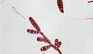 **FILE** The Exserohilum rostratum fungus is seen here. Exserohilum, a kind of black mold, is the primary cause of a number of fungal meningitis cases afflicting people who got steroid back injections for pain. (Associated Press/The Centers for Disease Control and Prevention)