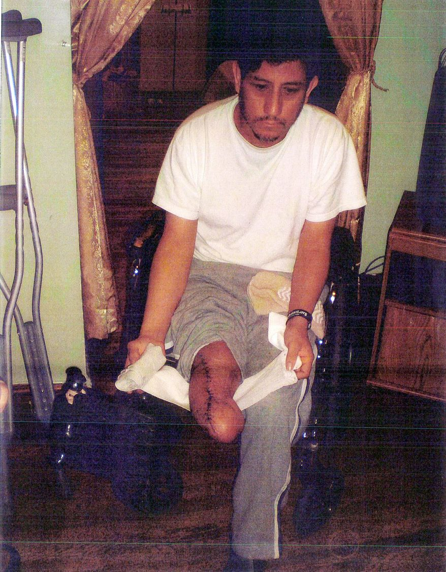 David Jiminez lost his leg from the same crucifix where he prayed while his wife was recovering from cancer. The Mexican immigrant is now seeking $3 million from the church where he was hurt while cleaning the crucifix, but the Archdiocese of New York says it has no liability and is challenging his lawsuit.  (Associated Press)