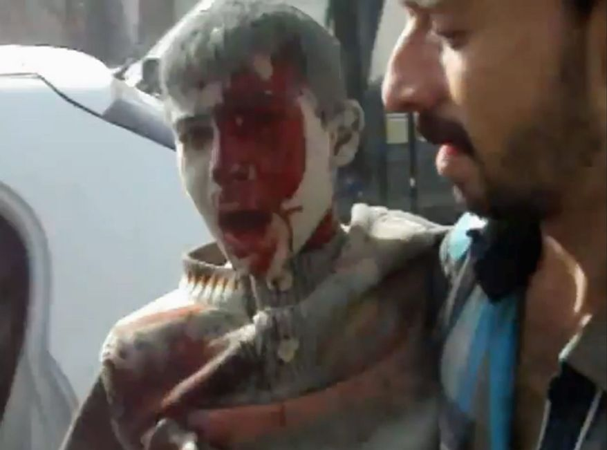 This image taken from video obtained from Shaam News Network, which has been authenticated based on its contents and an Associated Press journalist who saw a plane bomb an area around the Syrian-Turkish border town of Ras al-Ayn, shows a wounded Syrian youth being placed in a car moments after an airstrike by Syrian warplanes in Ras al-Ayn, Syria, on Nov. 12, 2012. (Associated Press/Shaam News Network via AP video)