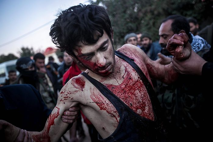 In this Saturday, Dec. 15, 2012 photo, people help a wounded Free Syrian Army fighter during heavy clashes with government forces at a military academy besieged by rebels north of Aleppo, Syria. (AP Photo/Narciso Contreras)