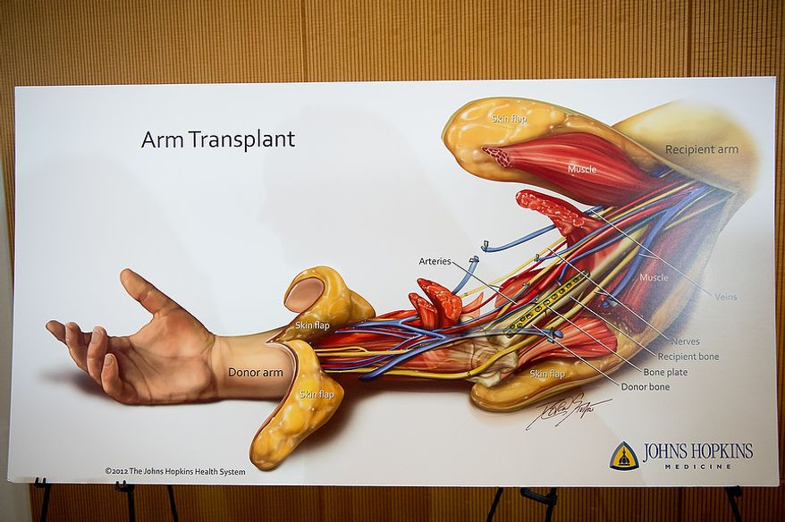 A diagram of an arm transplant on display at a press conference to announce the successful completion of the Johns Hopkins Hospital's first bilateral arm transplant performed on Iraq war veteran Brendan Marrocco, Baltimore, Md., Tuesday, January 29, 2013. Marrocco lost all four limbs from a bomb outside Baghdad, Iraq. (Andrew Harnik/The Washington Times)
