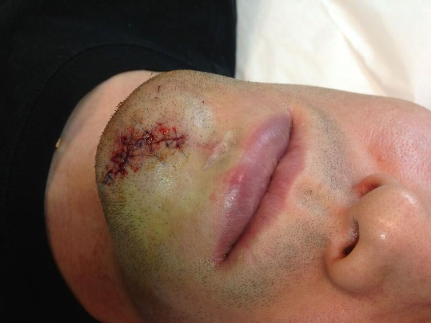 """Washington Capitals forward Alex Ovechkin tweeted this photo March 28, 2013 after taking a puck off the chin during practice. He added: """"After hockey!! 22 stitches hahaha )))"""""""