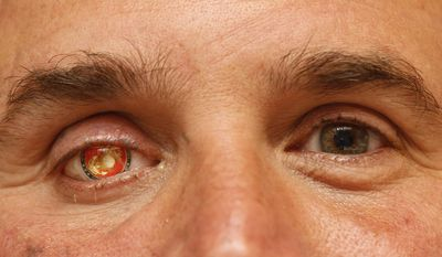 "In this Monday, Sept. 17, 2012 file photo, Nick Popaditch, a Republican congressional candidate in the California's 53rd District, poses for a photo showing his Marine Corps insignia in his right eye in La Mesa, Calif. Popaditch, who was injured in Iraq on April 7, 2004, when shrapnel tore through his sinuses and destroyed his right eye, says, ""...if the bad guys come back into control, that's not something I can control 8,000 miles away here. I'm just proud of the fact that when it came time to stand and fight for those things, those concepts of freedom, liberty, human rights ... I'm glad my nation did it."" (AP Photo/Lenny Ignelzi)"