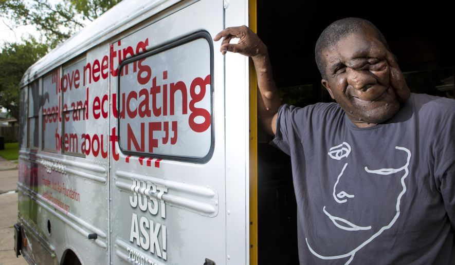 IN this July 24, 2014 photo, Reggie Bibbs, 49, stands on the entrance of his touring bus parked on front of his home in Houston. Bibbs with his supporters will be touring the nation as part as his project to bring awareness to his genetic disorder called neurofibromatosis. The disorder affects 1 in 3,000 people in the U.S, and can cause pain, blindness, disfigurement and death. Thursday, July 24, 2014, in Houston. (AP Photo/Houston Chronicle, Marie D. De Jesus )