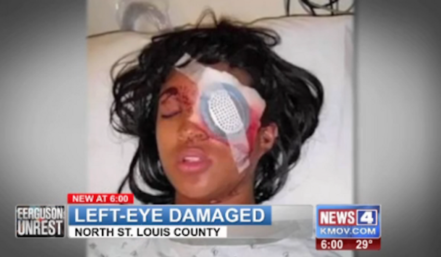 Dornella Conner, who is pregnant, claims she wasn't protesting Tuesday when St. Louis police shot her in the face with a bean bag round, causing her to lose an eye. (KMOV)