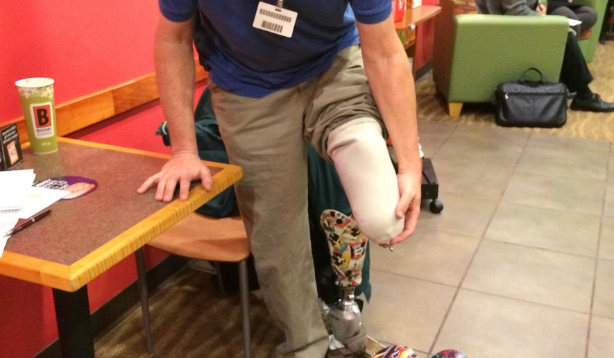 In a photo from Nov. 25, 2014, Dave Dunville demonstrates how he puts on his prosthetic leg during an interview in Howell, Mich. He made the decision to have his left leg removed after suffering injuries in a 1999 fall. Dunville was one of 17,000 Michiganders who lost a limb annually, according to a study done by the Amputee Coalition and the U.S. Centers for Disease Control and Prevention. Years after the accident he now works for H-Care in Flint and spends time at Hurley Medical Center talking to patients preparing for an amputation or recovering from one. (AP Photo/Livingston County Daily Press & Argus, Abby Welsh)