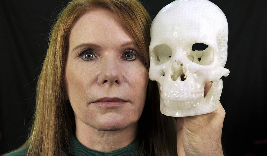 "In this photo taken Jan. 13, 2015, Pamela Shavaun Scott holds a 3D printer model of her skull after her brain tumor was removed from behind her eye, in Morro Bay, Calif. Doctor after doctor said removing the tumor causing Pamela Shavaun Scott's unrelenting headaches would require cutting open the top of her skull and pushing aside her brain. Then one doctor offered a startling shortcut _ operating through her eyelid to get into the hard-to-reach center of the head. A big benefit: ""We have to saw off much less of your head.""  (AP Photo/Phil Klein)"