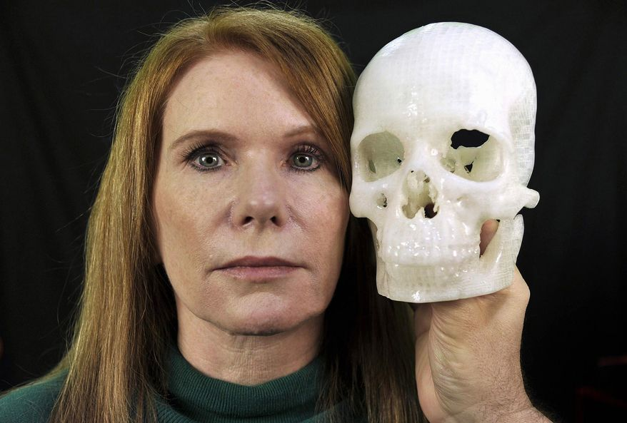 """In this photo taken Jan. 13, 2015, Pamela Shavaun Scott holds a 3D printer model of her skull after her brain tumor was removed from behind her eye, in Morro Bay, Calif. Doctor after doctor said removing the tumor causing Pamela Shavaun Scott's unrelenting headaches would require cutting open the top of her skull and pushing aside her brain. Then one doctor offered a startling shortcut _ operating through her eyelid to get into the hard-to-reach center of the head. A big benefit: """"We have to saw off much less of your head.""""  (AP Photo/Phil Klein)"""