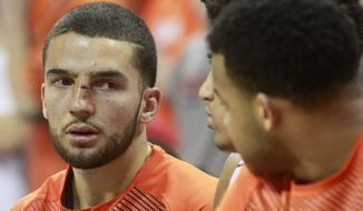 Virginia guard London Perrantes, left, received a gash on his nose after colliding with teammate Malcolm Brogdon during the second half an NCAA basketball game, Sunday Feb. 22, 2015, in Charlottesville, Va. Pertness did not return to the game. Virginia defeated Florida State 51-41. (AP Photo/Andrew Shurtleff)