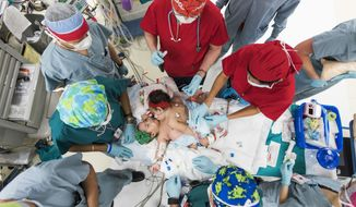 Surgeons and clinicians at Texas Children's Hospital prepare to separate conjoined twins Knatalye Hope and Adeline Faith Mata. Born in April 2014 at Texas Children's Pavilion for Women, the girls were successfully separated on Feb. 17, 2015, and are recovering in the Pediatric Intensive Care Unit at Texas Children's Hospital. (PRNewsFoto/Texas Children's Hospital)