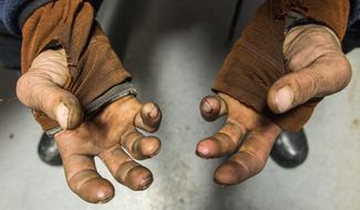 Musher Lance Mackey shows his hands at the Tanana, Alaska checkpoint on Wednesday, March 11, 2015. Mackey suffers from poor circulation in his hands and feet and is using battery-powered gloves in this year's Iditarod race. (AP Photo/Alaska Dispatch News, Loren Holmes)