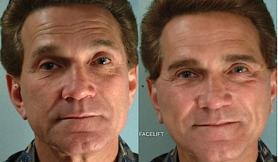 A before and after facelift on a 67-year-old man. (ASAPS photo)