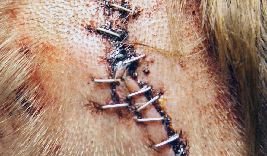 This photo shows a bear bite on the head of Joshua Barber who spoke about the bear attack from his Mercy Regional Medical Center room, Tuesday, June 2, 2015 in Durango, Colo. A bear that bit two people illegally camping near Durango has been killed by wildlife officers, and it could be the same bear that also attacked two other people last week.(Shaun Stanley/The Durango Herald via AP) MANDATORY CREDIT