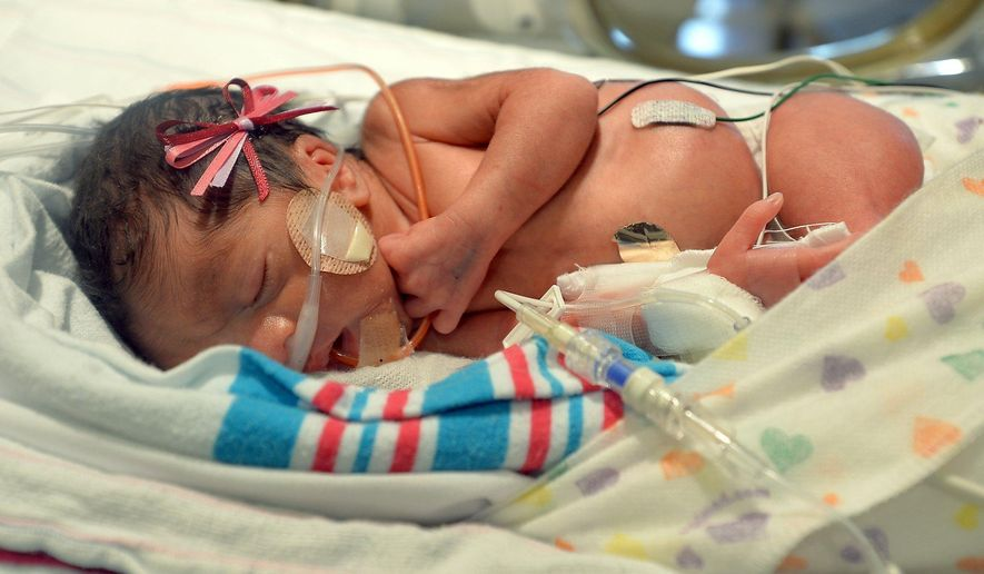 Triplet Genesis Camila Ramos sleeps in the Community Regional Medical Center's Neonatal Intensive Care Unit in Fresno, Calif., on June 22, 2015.  Three sets of triplets were recently born and are all getting bigger at Community Regional Medical Center's Neonatal Intensive Care Unit. (Silvia Flores/The Fresno Bee via AP) LOCAL PRINT OUT (VISALIA TIMES-DELTA, REEDY EXPONENT, KINGBURG RECORDER, SELMA ENTERPRISE, HANFORD SENTINEL, PORTERVILLE RECORDER, MADERA TRIBUNE, THE BUSINESS JOURNAL FRENSO); LOCAL STATIONS OUT (KSEE24, KFSN30, KGE47, KMPH26)