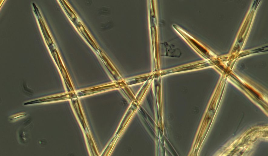In this undated handout microscopy photo provided by NOAA Fisheries, the algae pseudo-nitzchia, which produces the toxic domoic acid, is seen from an algae bloom sample that the NOAA ship Bell M. Shimada collected during its survey this summer on the West Coast. One of the largest toxic algae blooms recorded off the West Coast is much denser, more widespread and may go extend deeper than initially thought, say scientists who surveyed the event aboard a National Oceanic and Atmospheric Administration research vessel. (NOAA Fisheries via AP)