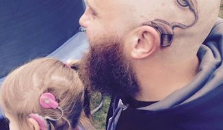 Alistair Campbell is showing his support for his 6-year-old daughter by getting his very first tattoo on his head to match her cochlear implant. (Facebook/Anita-Alistair Campbell)