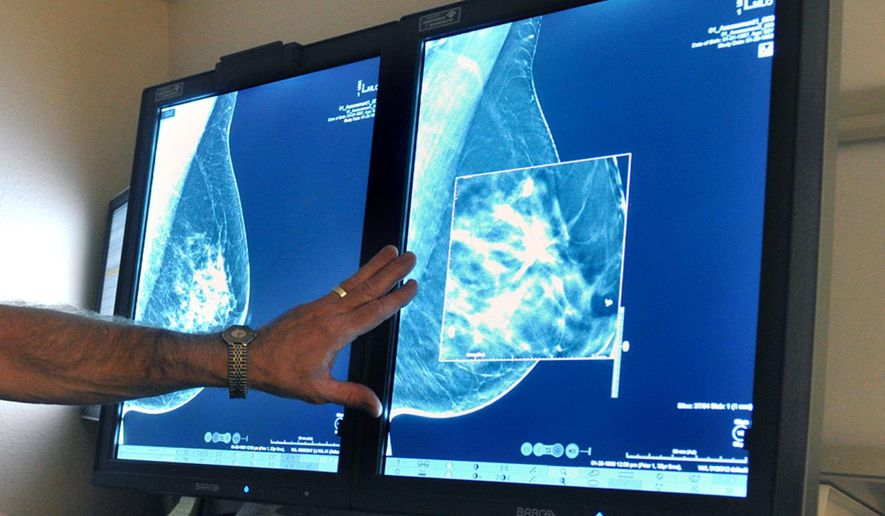 FILE - In this Tuesday, July 31, 2012, file photo, a radiologist compares an image from earlier, 2-D technology mammogram to the new 3-D Digital Breast Tomosynthesis mammography in Wichita Falls, Texas. The technology can detect much smaller cancers earlier. Chances of dying from DCIS (ductal carcinoma in situ), a very early form of breast cancer are small but the disease is riskier for young women and blacks - disparities seen previously in more advanced cancer, according to a large study published Thursday, Aug. 20, 2015 in JAMA Oncology. (Torin Halsey/Times Record News via AP)