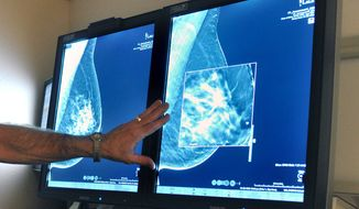 In this Tuesday, July 31, 2012, file photo, a radiologist compares an image from earlier, 2-D technology mammogram to the new 3-D Digital Breast Tomosynthesis mammography in Wichita Falls, Texas. The technology can detect much smaller cancers earlier. (Torin Halsey/Times Record News via AP) ** FILE **