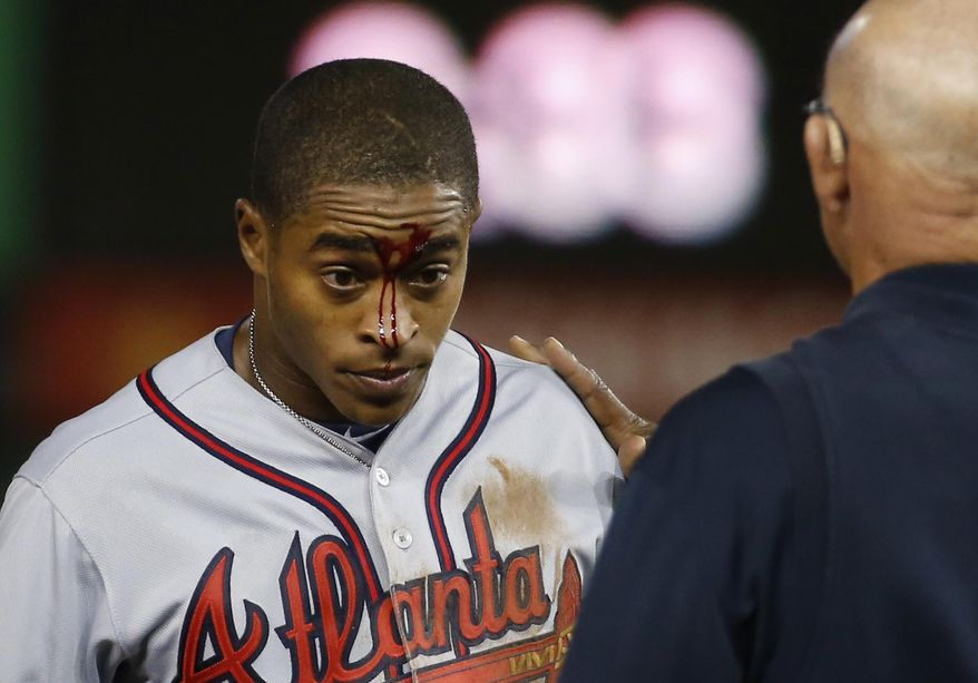 Atlanta Braves Mallex Smith has blood on his face after he was injured during a steal attempt of second base during the fourth inning of a baseball game against the Washington Nationals at Nationals Park, Monday, April 11, 2016, in Washington. Smith left the game. (AP Photo/Alex Brandon)