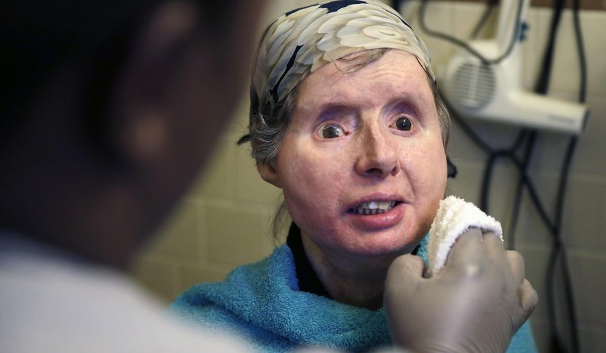 FILE - In this Feb. 20, 2015 file photo, Charla Nash smiles as her care worker washes her face at her apartment in Boston. The Connecticut woman who underwent a face transplant five years ago after being attacked by a chimpanzee is back in a Boston hospital after doctors discovered her body is rejecting the transplant. Nash says doctors have decided to end an experimental drug treatment and put her back on her original medication in the hopes of reversing the rejection.  (AP Photo/Charles Krupa, File)