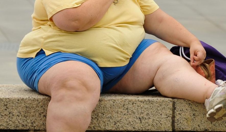 More than one-third of the U.S. population is obese, according to the Centers for Disease Control and Prevention.  (Associated Press/File)