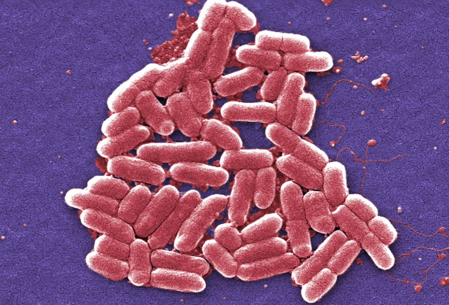 This 2006 colorized scanning electron micrograph image made available by the Centers for Disease Control and Prevention shows the O157:H7 strain of the E. coli bacteria. On Wednesday, May 26, 2016, U.S. military officials reported the first U.S. human case of bacteria resistant to an antibiotic used as a last resort drug. The 49-year-old woman has recovered from an infection of E. coli resistant to colistin. But officials fear that if the resistance spreads to other bacteria, the country may soon see germs impervious to all antibiotics. (Janice Carr/CDC via AP)