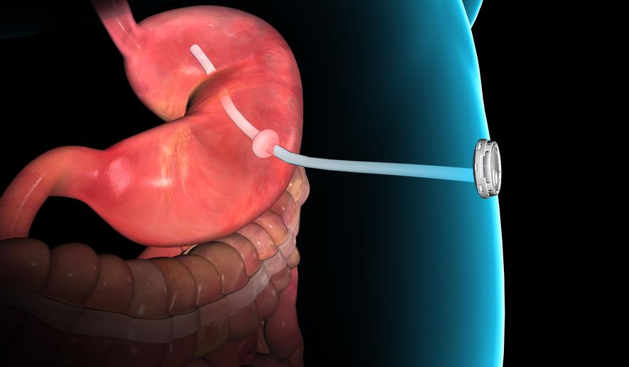 This rendering provided by Aspire Bariatrics, Inc. demonstrates the use of the AspireAssist weight loss device, approved by the Food and Drug Administration on Tuesday, June 14, 2016. The AspireAssist system consists of a thin tube implanted in the stomach which helps remove nearly a third of the food stored in the stomach before calories are absorbed into the body, causing weight loss. (Aspire Bariatrics, Inc. via AP) MANDATORY CREDIT