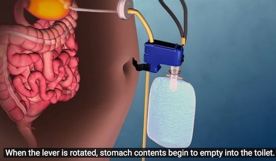 The U.S. Food and Drug Administration announced the approval of the AspireAssist on June 14, 2016. The device sucks food directly out of the stomach. (YouTube, AspireAssist)