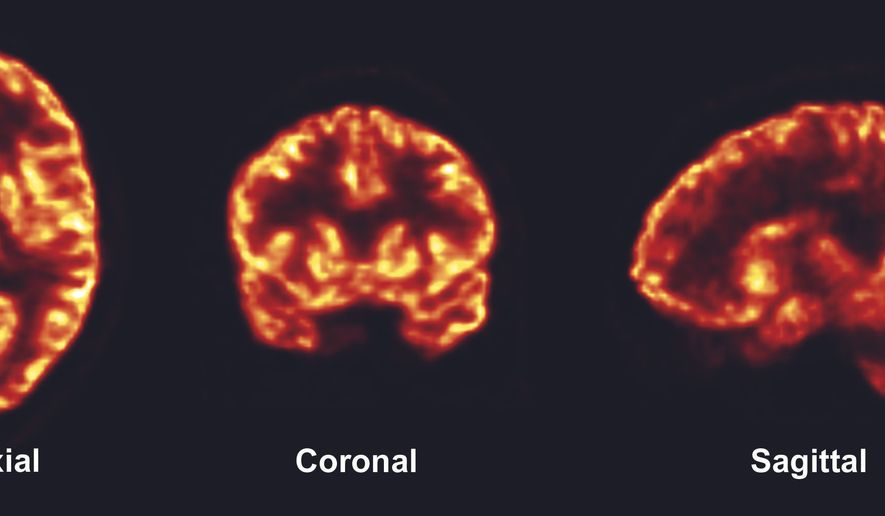 In this photo provided by Science Translational Medicine, PET scans taken at the Yale PET Center show the density of connections between nerve cells, called synapses, in a healthy living brain. Yale researchers developed a way to picture synapses in a living brain, something that until now has been studied mostly during autopsies. (Science Translational Medicine via AP)