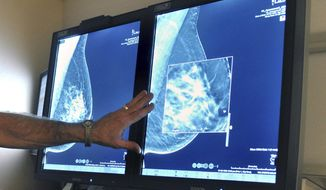 FILE - In this Tuesday, July 31, 2012 file photo, a radiologist compares an image from earlier, 2-D technology mammogram to the new 3-D Digital Breast Tomosynthesis mammography in Wichita Falls, Texas. The technology can detect much smaller cancers earlier. A study released Wednesday, Oct. 12, 2016 questions the value of mammograms for breast cancer screening. It concludes that a woman is more likely to be diagnosed with a tumor that is not destined to become large, and presumably more life-threatening, than she is to have earlier detection of one that is. (Torin Halsey/Times Record News via AP)