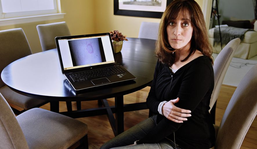 ADVANCE FOR SATURDAY MAY 20 AND THEREAFTER - In a Friday, April 14, 2017 photo, Jill Wichner, 43, poses for a photo in her Southampton home, with a photo on the screen of her computer of the bull's eye rash that she found on her arm while on a cruise in 2007. She has been suffering with symptoms of Lyme disease ever since.  (Kim Weimer/The Intelligencer via AP)