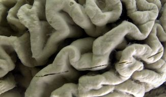 In this Oct. 7, 2003, file photo, a section of a human brain with Alzheimer's disease is on display at the Museum of Neuroanatomy at the University at Buffalo, in Buffalo, N.Y. (AP Photo/David Duprey, File)