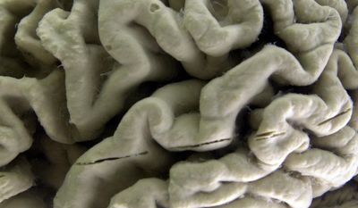 FILE - In this Oct. 7, 2003, file photo, a section of a human brain with Alzheimer's disease is on display at the Museum of Neuroanatomy at the University at Buffalo, in Buffalo, N.Y. (AP Photo/David Duprey, File)