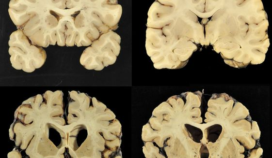 This combination of photos provided by Boston University shows sections from a normal brain, top, and from the brain of former University of Texas football player Greg Ploetz, bottom, in stage IV of chronic traumatic encephalopathy. According to a report released on Tuesday, July 25, 2017, by the Journal of the American Medical Association, research on 202 former football players found evidence of a brain disease linked to repeated head blows in nearly all of them, from athletes in the National Football League, college and even high school. (Dr. Ann McKee/BU via AP) ** FILE **