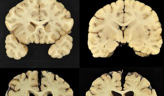 This combination of photos provided by Boston University shows sections from a normal brain, top, and from the brain of former University of Texas football player Greg Ploetz, bottom, in stage IV of chronic traumatic encephalopathy. According to a report released on Tuesday, July 25, 2017 by the Journal of the American Medical Association, research on the brains of 202 former football players has confirmed what many feared in life _ evidence of chronic traumatic encephalopathy, or CTE, a devastating disease in nearly all the samples, from athletes in the NFL, college and even high school. (Dr. Ann McKee/BU via AP) ** FILE **