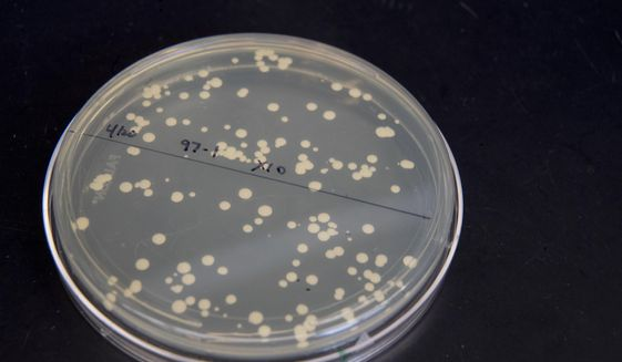 This Tuesday, April 25, 2017, photo shows a a petri dish containing live yeast cultures at a New York University labe at the Alexandria Center for Life Sciences in New York, where researchers are attempting to create completely man-made, custom-built DNA. The work may reveal basic, hidden rules that govern the structure and functioning of genomes. But it also opens the door to life with new and useful characteristics. (AP Photo/Mary Altaffer) ** FILE **