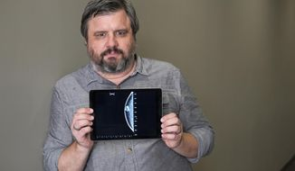In this July 13, 2017 photo, Associated Press reporter Andrew Dalton holds an iPad displaying an image of his mammogram in downtown Los Angeles. Dalton described his experience as the rare man who underwent a mammogram in a story for the AP.  (AP Photo/Richard Vogel)