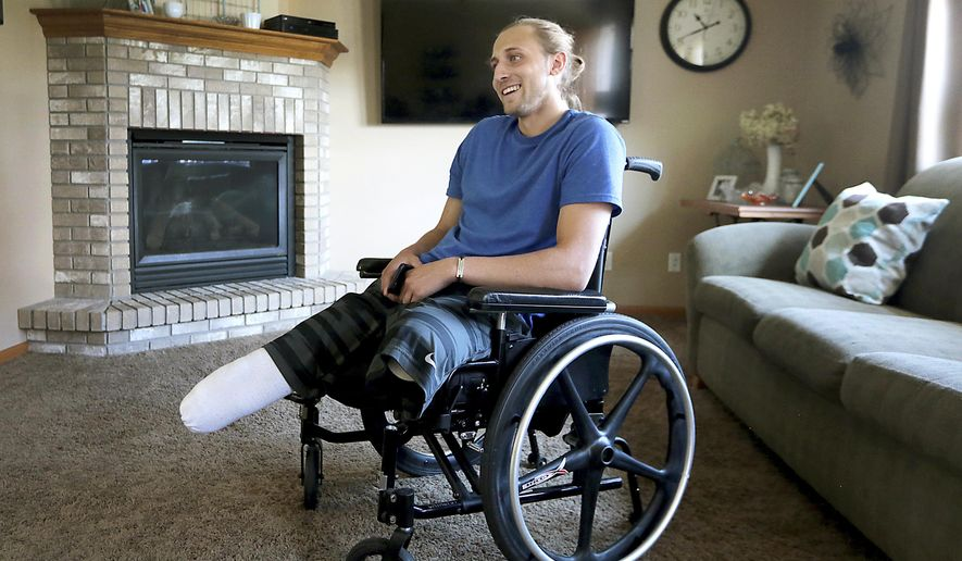 Collin VanderGalien, who lost both of his legs in an explosion at the Didion Milling Plant in Cambria, Wis. in May, is pictured at his home in Randolph, Wis., Wednesday, Aug. 9, 2017. Vander Galien has received prosthetic legs in his continuing recovery. (John Hart/Wisconsin State Journal via AP)