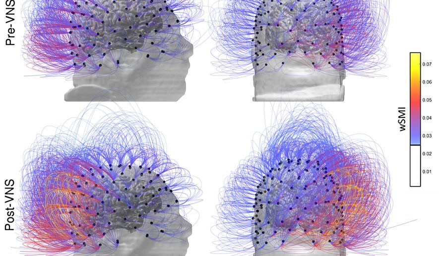 This image provided by the CNRS Marc Jeannerod Institute of Cognitive Science in Lyon, France, shows brain activity in a patient before, top row, and after vagus nerve stimulation. Warmer colors indicate an increase of connectivity. In a report published Monday, Sept. 25, 2017, French doctors say they restored some signs of consciousness in a brain-injured man who hadn't shown any awareness in 15 years. (CNRS Marc Jeannerod Institute of Cognitive Science, Lyon, France via AP)