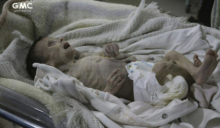 In this photo provided on Sunday, Oct. 22, 2017 by the Syrian anti-government activist group Ghouta Media Center, which has been authenticated based on its contents and other AP reporting, shows a Syrian baby Sahar Defdaa who suffered from severe malnutrition, cries at a makeshift clinic a day before she died, in the rebel controlled town of Hamouria, in the eastern suburb of Damascus, Syria. Syrian opposition activists say malnutrition and shortages in medicine are increasing the suffering in besieged, rebel-held eastern suburbs of the Syrian capital Damascus, adding that two children have died as a result in the past two months. (Ghouta Media Center via AP)