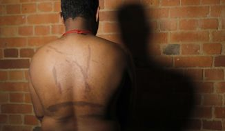 In this July 18, 2017, photo, a Sri Lankan man known as Witness #249 shows brand marks on his back during an interview in London. He said his captors used hot iron rods to make the marks meant to symbolize tiger stripes for the Tamil Tigers rebel group. He, like others, escaped Sri Lanka and was smuggled to Europe where he awaits a decision on political asylum. (AP Photo/Frank Augstein)
