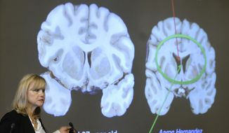 Ann McKee, director Boston University's center for research into the degenerative brain disease chronic traumatic encephalopathy, or CTE, shows a scan of NFL football player Aaron Hernandez's brain. The cross section of the brain projected at left is labeled a normal 27-year-old. Researchers say they have found a way to diagnose CTE in living patients. (AP Photo/Steven Senne)