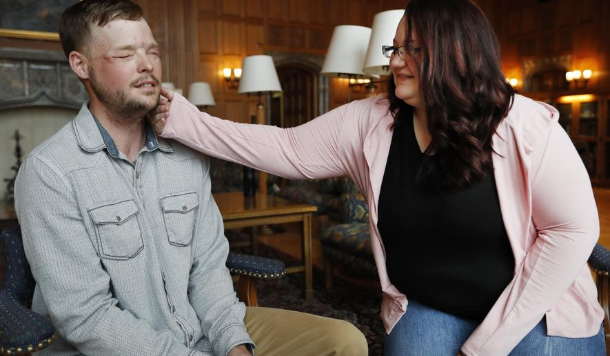 """Lilly Ross, right, feels the beard of face transplant recipient Andy Sandness during their meeting at the Mayo Clinic, Friday, Oct. 27, 2017, in Rochester, Minn. Sixteen months after surgery gave Sandness the face that once belonged to Calen """"Rudy"""" Ross, Sandness met the woman who had agreed to donate her high school sweetheart's face to him, who lived nearly a decade without one. (AP Photo/Charlie Neibergall)"""