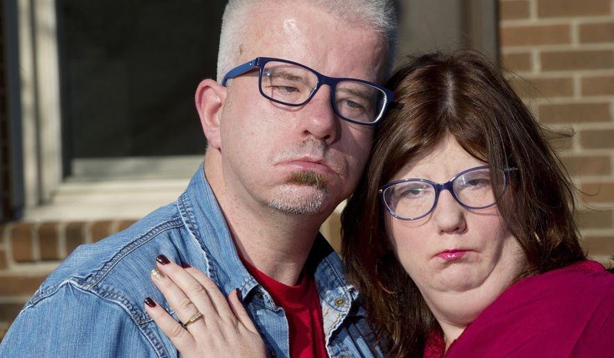In this Wednesday, Nov. 22, 2017 photo, Alex Barker of Coventry, England, and Erin Smith of Linwood, North Carolina, both of whom have moebius syndrome, a rare cranial nerve disorder that causes facial paralysis, pose at Smith's family home in Linwood near Lexington, N.C. Smith's engagement ring is a family heirloom from Barker, and the two plan to marry in 2018. (Donnie Roberts/The Dispatch via AP)