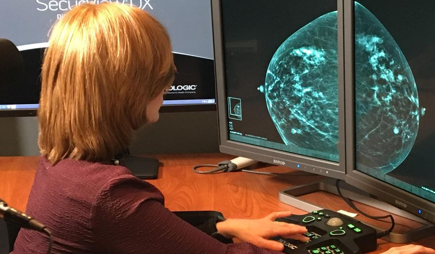 In this Nov. 21, 2017, photo provided by the Montefiore Health System, Dr. Tova Koenigsberg at The Montefiore Einstein Center for Cancer Care in New York shows an example of a traditional mammogram scan. U.S. health officials are beginning a huge study to compare traditional mammograms with 3-D versions to see if the newer choice might really improve screening for breast cancer. (Montefiore Health System via AP)