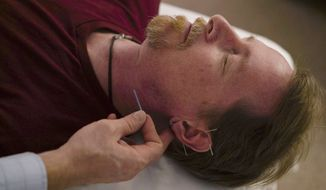 David Ramsey, a Medicaid patient who suffers from chronic pain after falling off a cliff in 2011, receives acupuncture treatment in Warrensville Heights, Ohio on November 13, 2017. Long derided as pseudoscience, acupuncture is increasingly being used by doctors and officials seeking a new weapon in the nation's struggle with opioids. Ohio's Medicaid program is the latest to start covering the cost of acupuncture for low-income patients in pain, following similar programs in California, Massachusetts, Oregon, and Rhode Island. (AP Photo/Dake Kang)